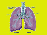 Lung Cancer Survival Rate - Stage 2 Lung Cancer