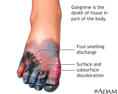 gangrene causes and treatment