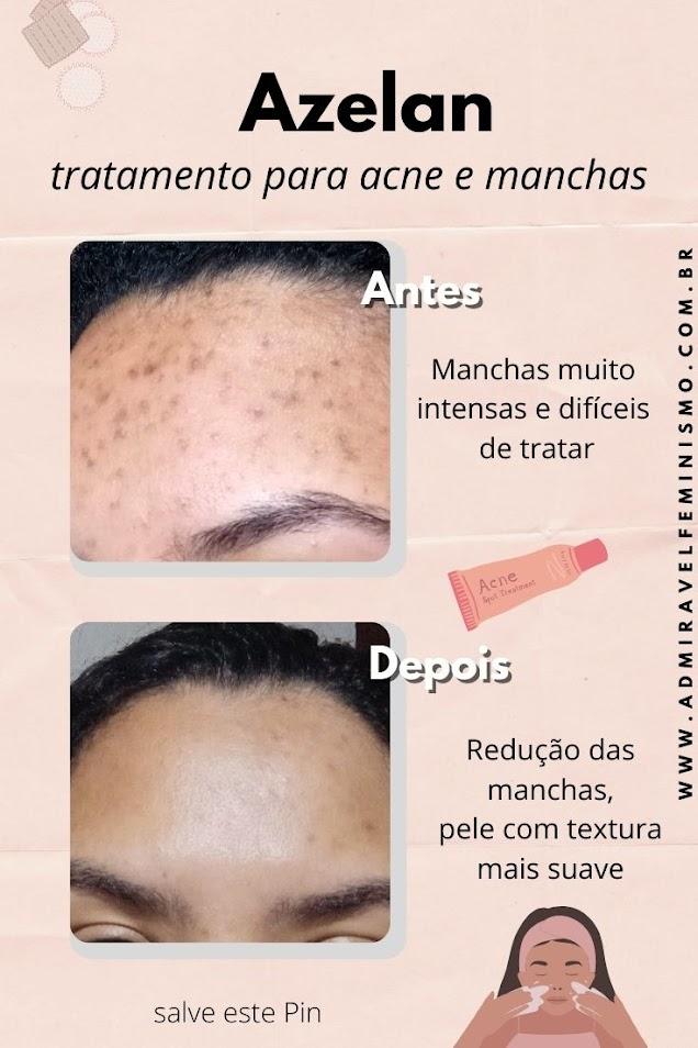 Resenha - Azelan tratamento para marcas de acne