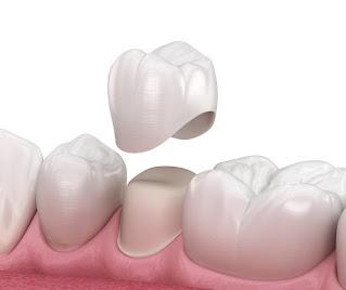 Dental Crown Dokter Gigi