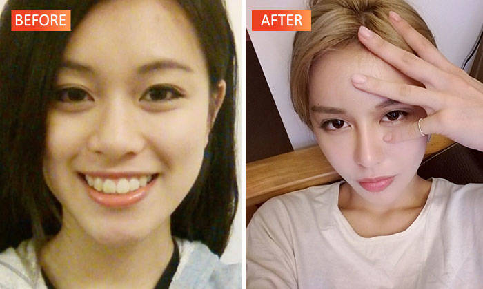 This 50-year-old Woman Underwent 40 Plastic Surgeries To Look 20 Years Old