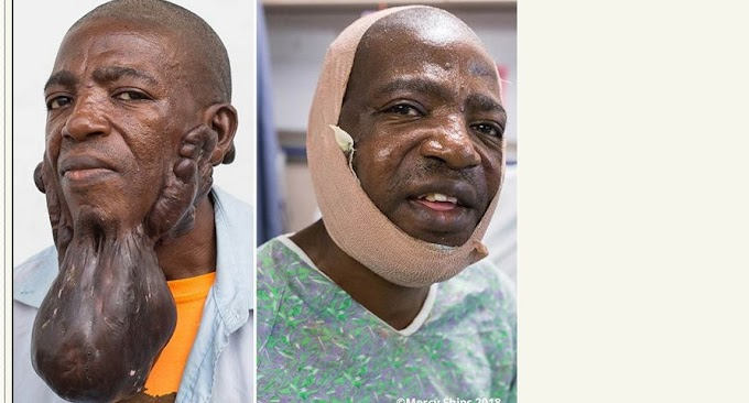 Man All Smiles After Removal Of Huge Tumor On His Face After 15 Years. Photos