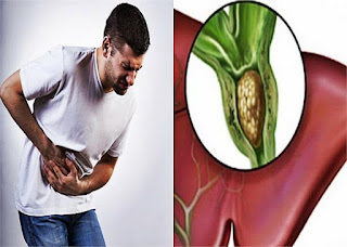 पित्ताशय की पथरी कारण और उपचार - Gallstones Causes And Treatment
