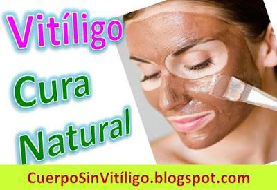 como-curar-el-vitiligo-naturalmente-en-casa