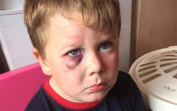 A white kid with a black eye