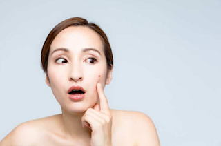 The Right Guide for Caring for Pimpled Facial Skin
