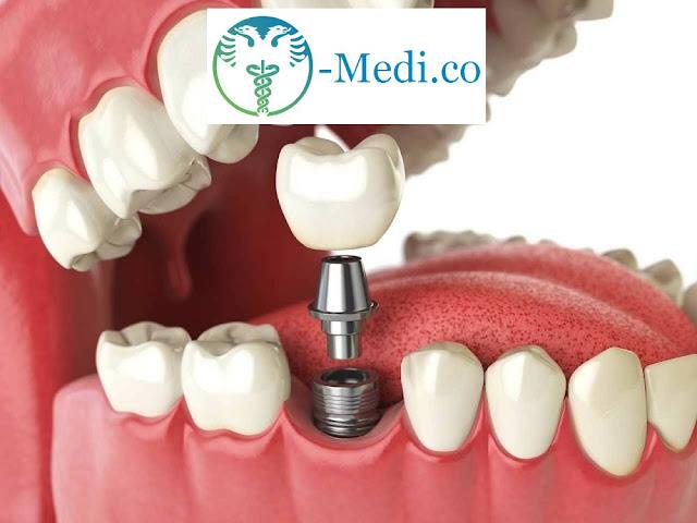 Turismo dentale in Albania! Impianto dentale in titanio a partire da 300 euro; Garantiamo e Certifichiamo la Qualità!