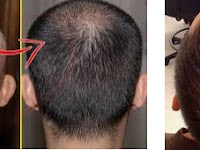 Male Pattern Hair Loss Explained