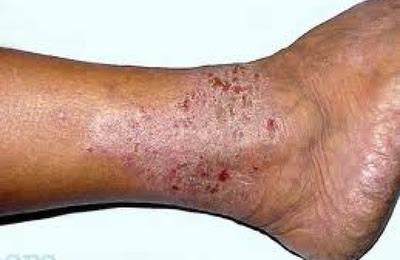Gambar Bahan Alami Mengobati Penyakit Kulit Leher, kepala, kaki, siku Bersisik atau Berkerak ??