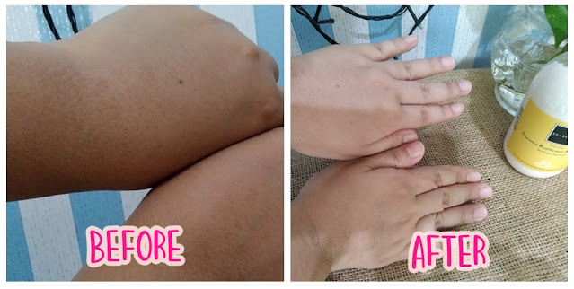 before after scarlet whitening