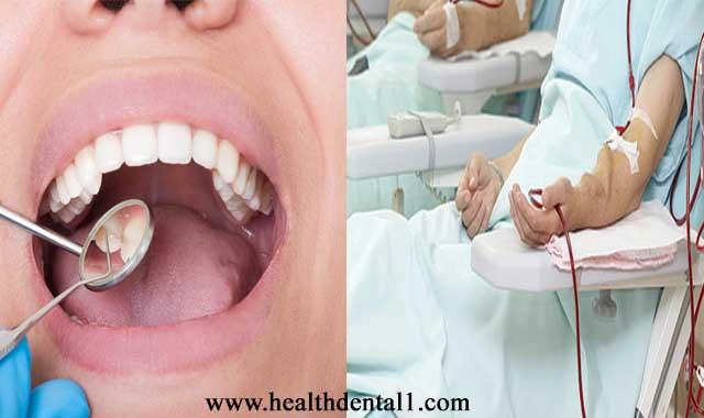 الامراض المزمنة وتأثيرها على صحة الفم