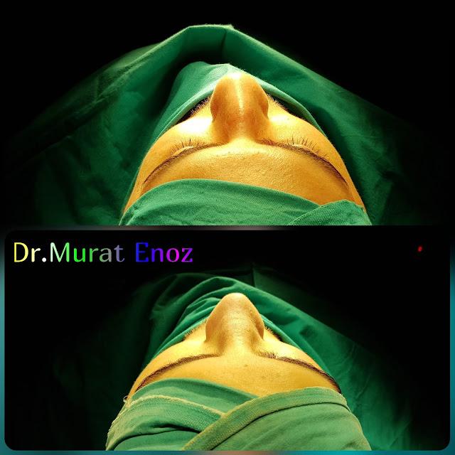 Rhinoplasty in men Istanbul - Male nose job Turkey