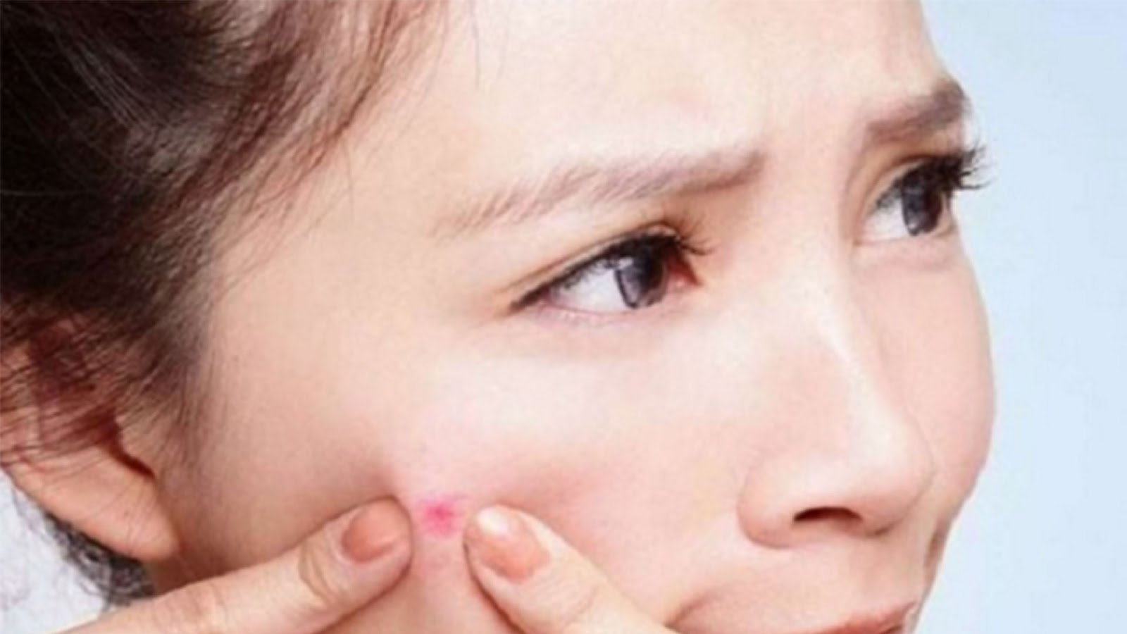 cystic acne, acne, acne treatment, acne skin care