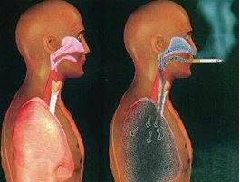 waarom roken verbieden