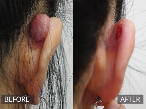 Remède naturel pour éliminer les chéloïdes sur les oreilles