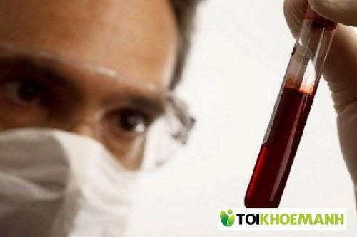 Làm sao Tôi biết có bị bệnh viêm gan B không? 2