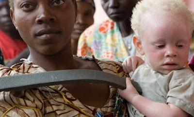 Abandoned baby with albinism in Tanzania being cared for by a kind stranger