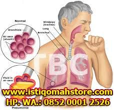 cara mengobati tbc secara alami dengan cepat dan ampuh