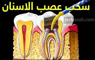 افضل دكتور عصب اسنان بالرياض