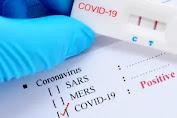 Kasus Konfirmasi Positif Covid-19 di Garut Bertambah Dua Orang