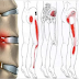 The Two Super Simple Ways To Remove Sciatica Nerve Pain