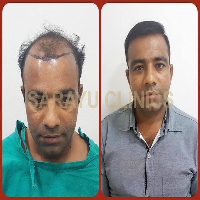 best hair transplant doctor in patel nagar, west delhi, rajendra nagar, delhi, india