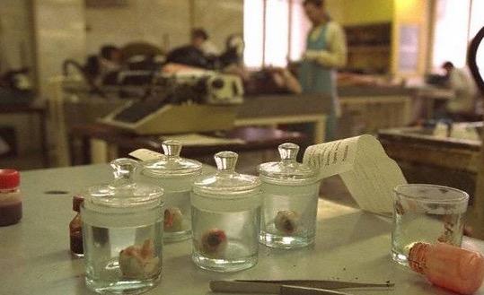 Ngeri Melihat Kilang Pemprosesan Organ Manusia di Rusia