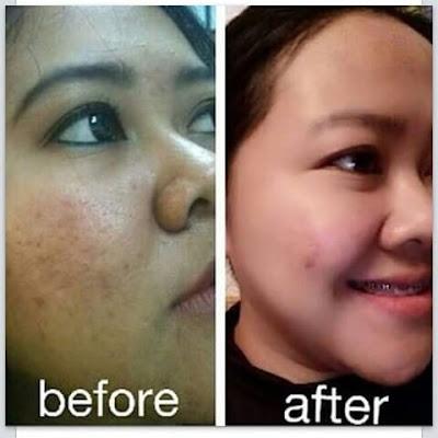 Cream Wajah Untuk Mengatasi Hiperpigmentasi