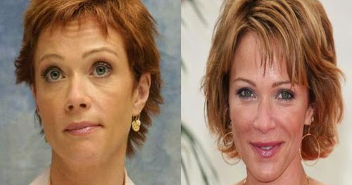 Chatter Busy: Lauren Holly Plastic Surgery