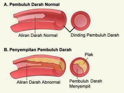 Obat Aterosklerosis Herbal