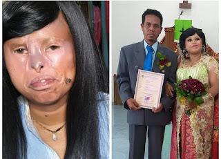 Tulus Menikahi Wanita Cacat Wajah, Pria Ini Dapat Pujian