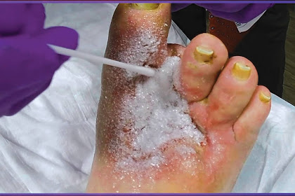 Applying Altrazeal to a Post Surgical Diabetic Foot Ulcer