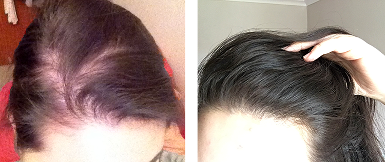 barely-there-beauty-hair-loss-before-after