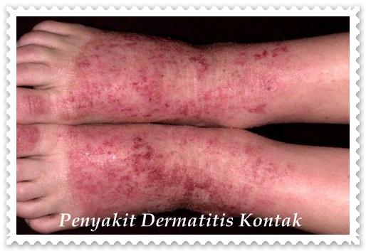 Obat Dermatitis Kontak Tradisional Kehebatan Teripang Emas