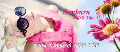 sunburn-safety-tips-for-beauty-skin-in-hindi, Sunburn-skin-care- tips, सनबर्न-से- त्वचा- को- सुरक्षित- रखने- के-खास- टिप्स,  Sunburn- Safety -Tips, tips-for-sunburn-skin