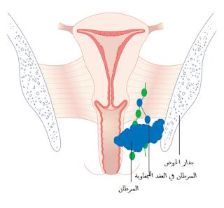 معلومات عن سرطان المهبل