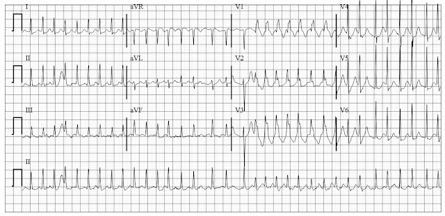 atrial fibrillation with rbbb aberrancy ashman