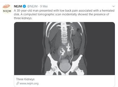 Organ ginjal yang berjumlah 3 di tubuh.