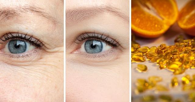 Voici comment utiliser la vitamine C sur le visage pour un effet botox (recette maison)