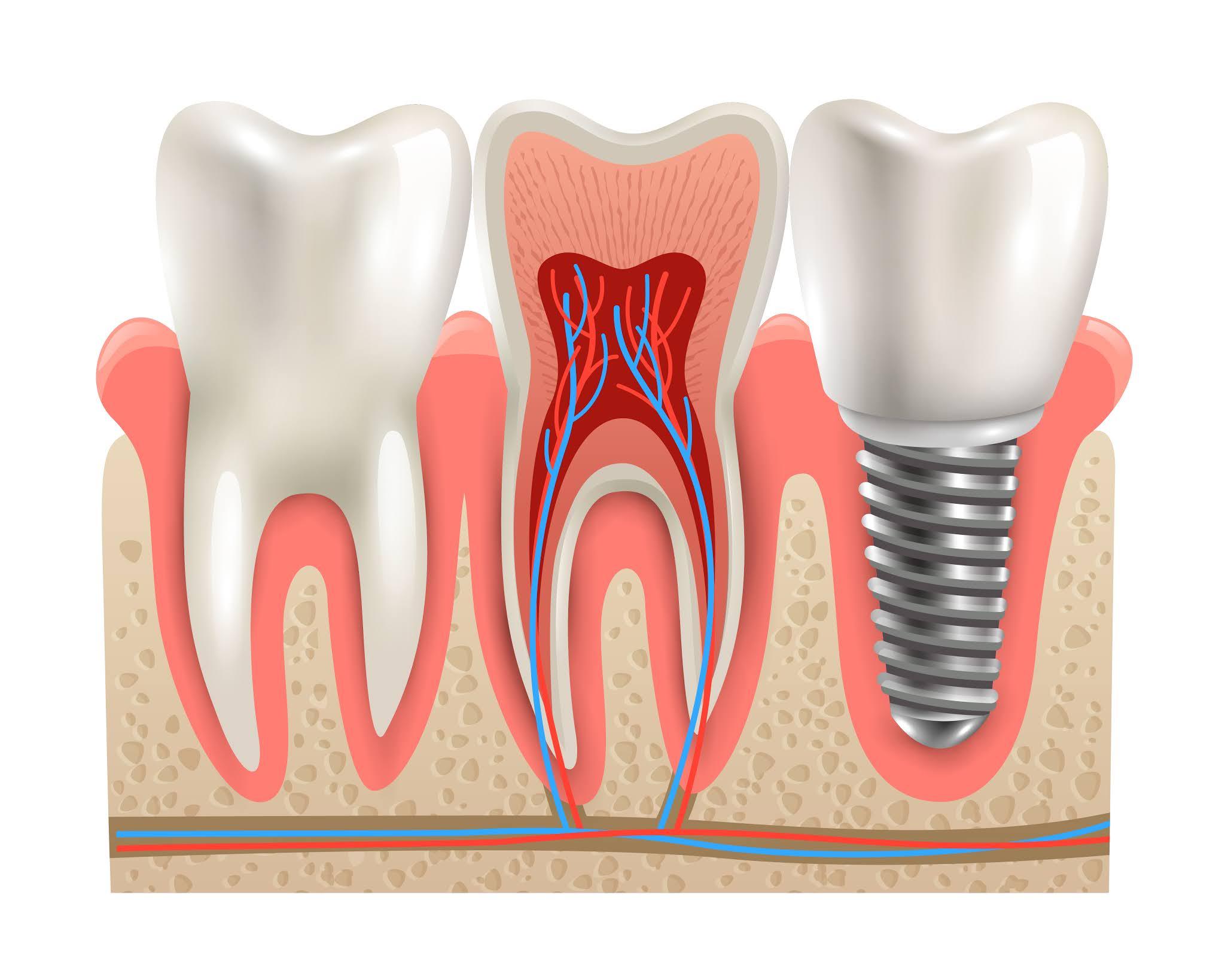 afiş Tıbbi Taç Diş Doğa Ağız Öğrenme Diş modeli Bakım Sağlık hizmeti klinik Görünüm yapı Vida Anatomi Kesmek Ameliyat Gerçekçi hijyen Eğitim teknisyen Sakız tedavi Yardım dış cephe kaplaması Önleme implant Emaye Porselen Kanal Oral Yapay Şematik Stomatoloji Uzakta Değiştir azı dişleri Anatomik Kapatmak çürük çürüme ortodontist