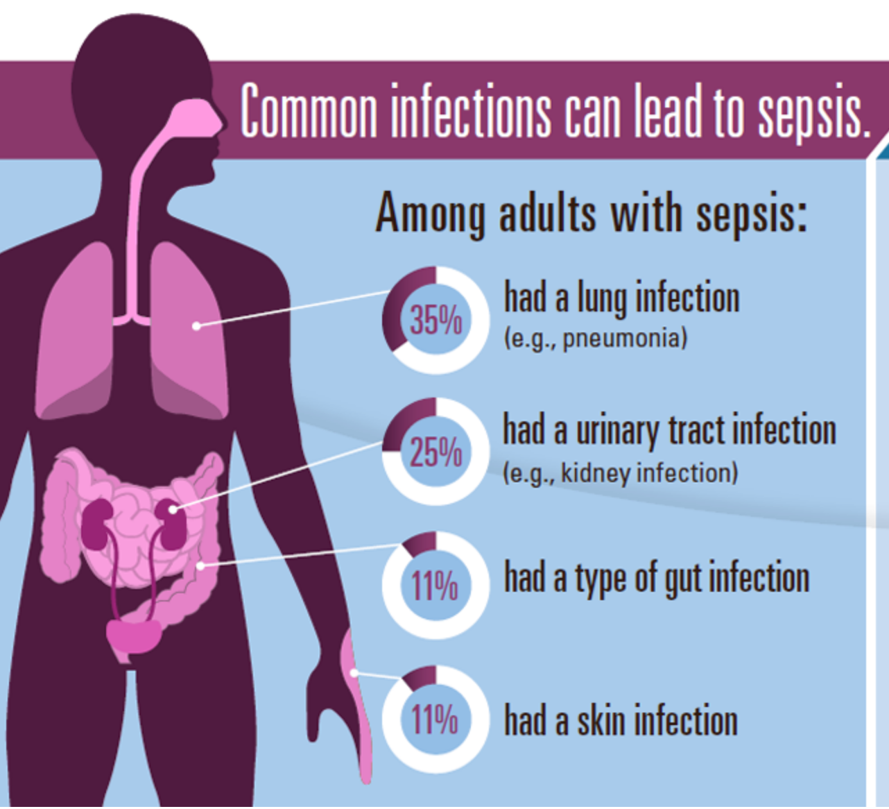 What Is Sepsis What to Know if You Are at Risk or Receive a Diagnosis picture