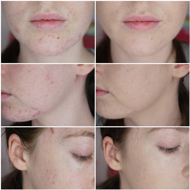 A grid showing before and after applying the IT Cosmetics Bye Bye Underye and CC Cream to blemishes