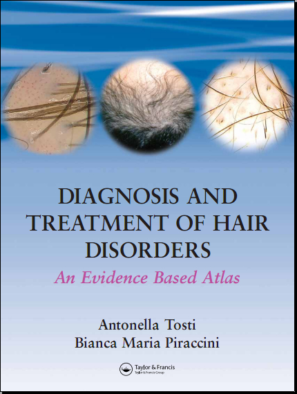 DiagDiagnosis and Treatment of Hair Disorders An Evidence-Based Atlasnosis and Treatment of Hair Disorders An Evidence-Based Atlas