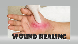 benefit for wound healing