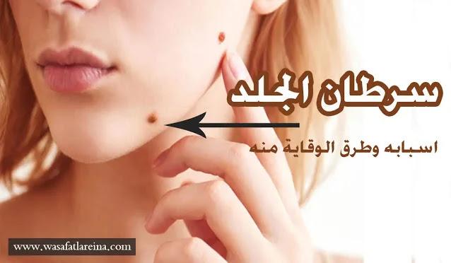 اسباب سرطان الجلد وطرق الوقاية منه
