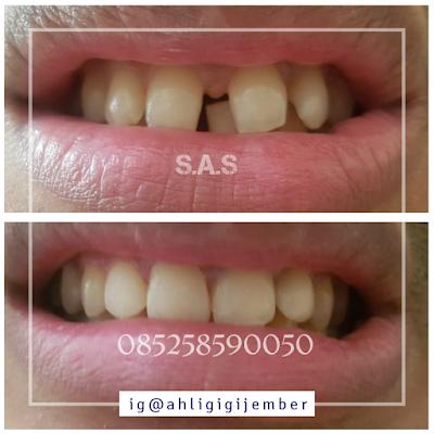 contoh foto hasil perbaikan gigi depan renggang bercelah