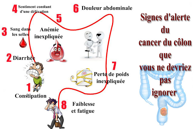 10 Signes d'alerte du cancer du côlon que vous ne devriez pas ignorer