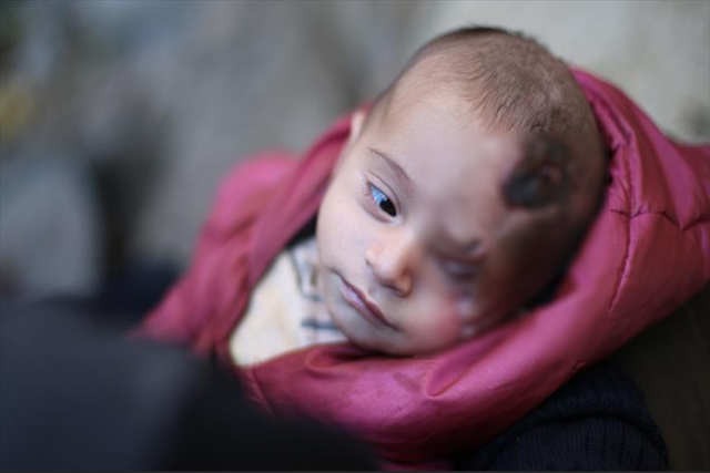 کریم کودک دو ماهه سوریه ای در غوطه شرقی که چشمش را از دست داد