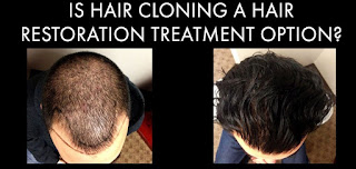 Is Hair Cloning an Option for Hair Restoration