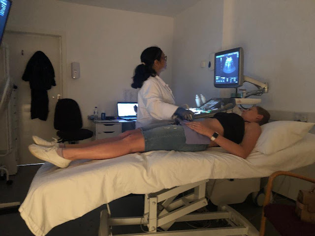 Reassurance Scan at Peek-a-Baby Birmingham